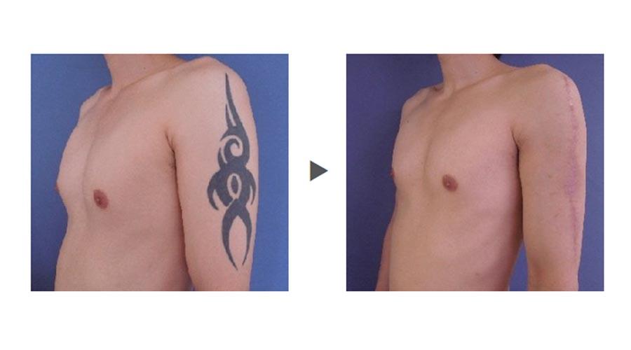 タトゥー除去方法の切除法