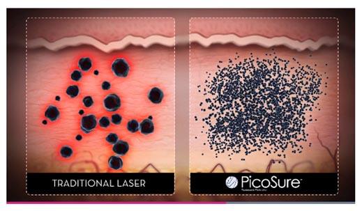 治療でレーザーがインクを粉砕するイメージ画像